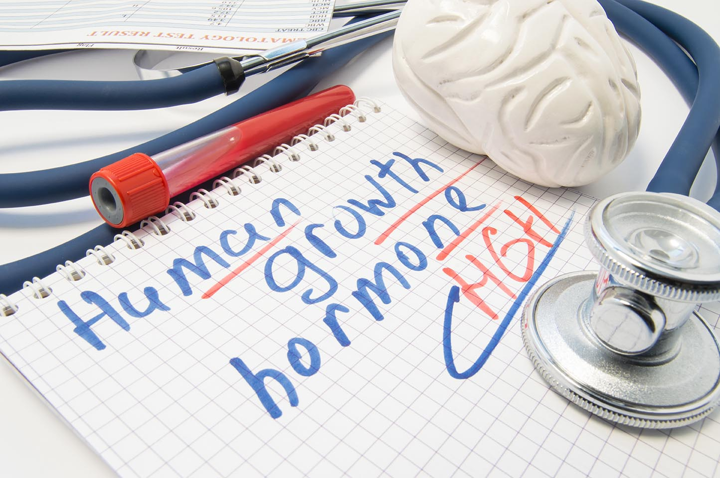 Human growth hormone written in notebook